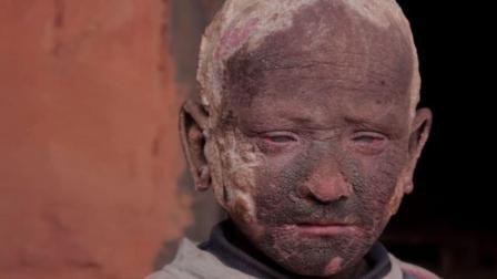 印度12岁男童浑身长满石头, 用刀砍都没事