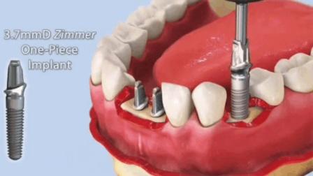 3D演示补牙全过程, 原来是这样一颗颗打进去的, 看着都感觉疼