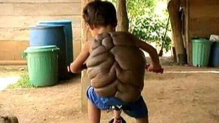 六岁男童长了一个龟壳, 村民称其不详不愿与其待在一个村子里