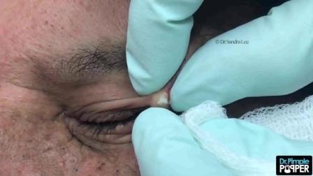 眼角呈串的皮脂腺囊肿看着不大, 内容不少