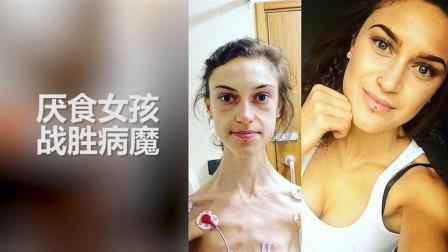 厌食症女孩曾连续几年体重仅30公斤, 战胜病魔的她竟是个大美女!