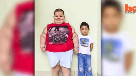 5岁的小男孩体重惊人, 重达80公斤!