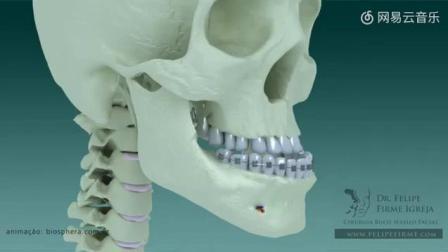 """动画演示""""地包天""""下颌骨手术, 自带整形功效~费用大概十万, 看着都感觉痛!"""