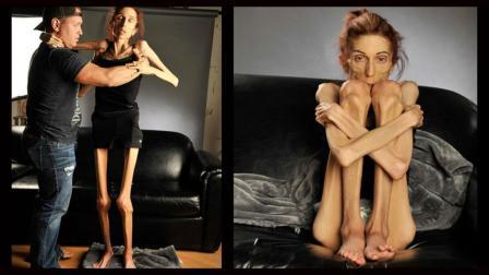 世界上最瘦的女人, 仅20公斤一阵风就吹飞了!