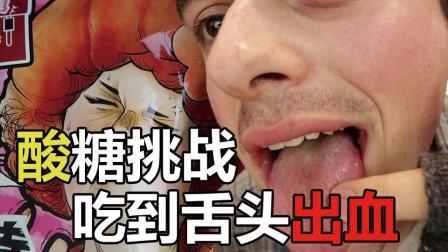 【拂菻坊】吃酸糖挑战 吃到舌头真出血