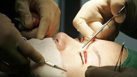 韩国的整容手术到底是怎么做的?