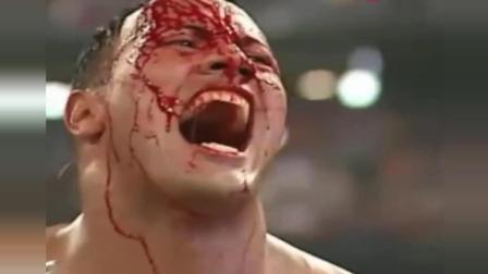 WWE: 巨石强森被对手打得头破血流, 目送其夺得金腰带!