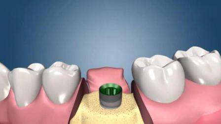 "3D模拟""种牙""过程, 隔着屏幕都感到疼"