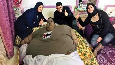 女子肥胖国度, 重1000斤, 手术后减掉一般体重!
