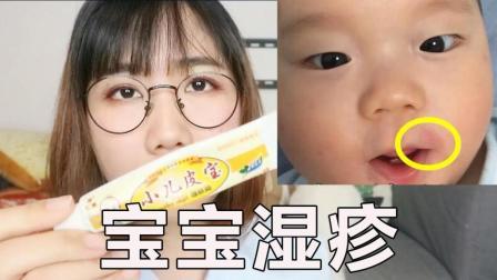 宝宝湿疹反复发作, 这6个方法最有效, 很实用!
