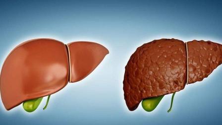 肝不好的人别吃这五类食物, 很多人吃了病情都恶化了, 别不重视!