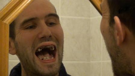 男子喝可乐上瘾, 一天喝6升, 结果27颗牙齿全被腐蚀!