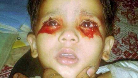 印度少女每天以泪洗面, 不过流的不是泪是血!