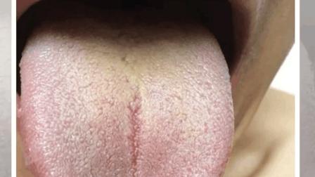 舌苔厚、发黄、发黑、发红、地图舌等现象是怎么回事?