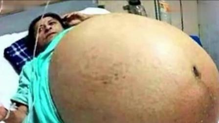 这个孕妈, 一次性生了17个宝宝。。。17个 17个啊。。。。。