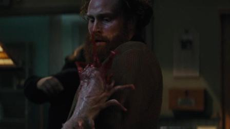 见过各种各样的怪物, 但是手变的还真没怎么见过, 你们呢?
