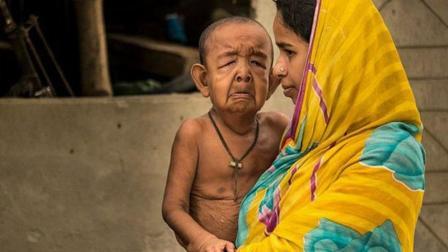 印度男童患怪病, 智商超群却长着一副80岁面孔!
