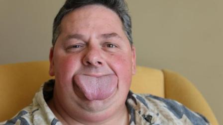 美国男子舌头宽8.6厘米, 网友: 真大舌头!