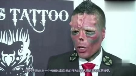 男子花费30万元整容, 不惜割掉鼻尖剪开舌头, 改造成美队红骷髅!