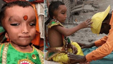 """印度小孩天生畸形, 却被认为是""""象头神转世""""!"""