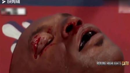拳王泰森大战刘易斯, 泰森时代的终结之战