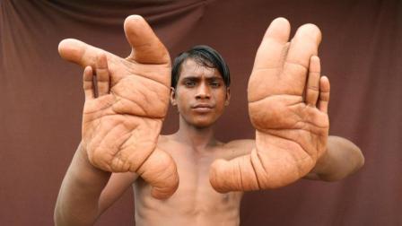手比脸还大, 印度13岁男孩拥有恶魔之手, 学校都不敢收他
