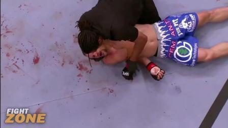 UFC那些真正的一击毙的拳手, 被打倒地抽搐的真实事件! 第五
