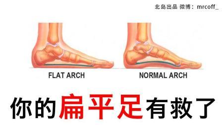 美腿课堂 vol.7 what? 花了很多钱都治不好的x形腿, 竟然是因为它! 扁平足的矫正方法