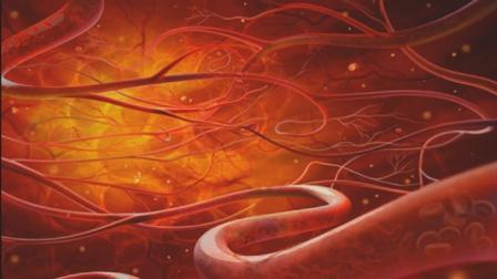 血管瘤要重视吗? 会有什么影响?