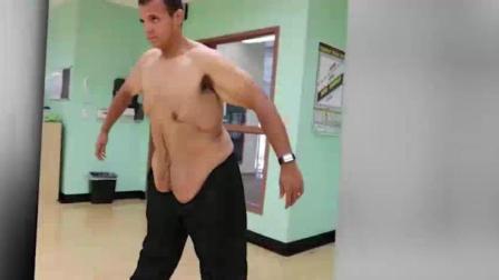 570斤胖子减肥成功 可还要做手术去除多余的皮
