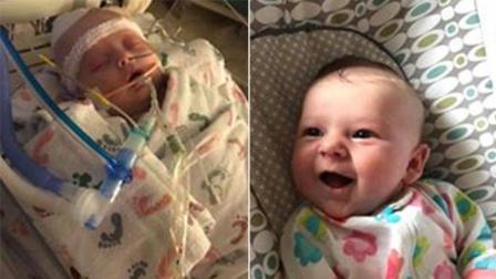 飞来横祸! 7周大女婴到球场替父亲加油 惨遭界外球击中头部