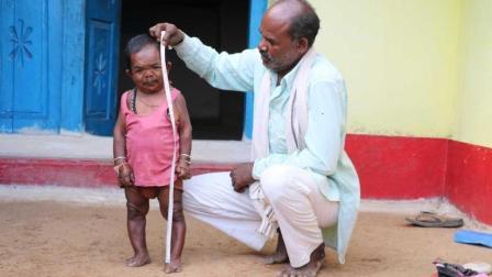印度男子患侏儒症, 竟被人们当做神仙来膜拜, 他因此发了财