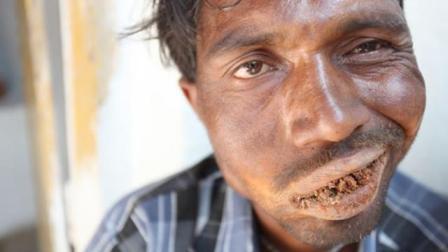 印度男子患上异食癖, 每天要吃1000克泥土, 医生检查后束手无策