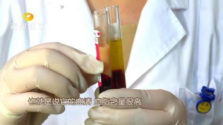 """听过""""熊猫血""""那你听过""""牛奶血""""吗? 男子献血抽出乳白色血液"""