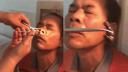 男子鼻腔觉得异常 医生检查后竟取出大蚂蟥