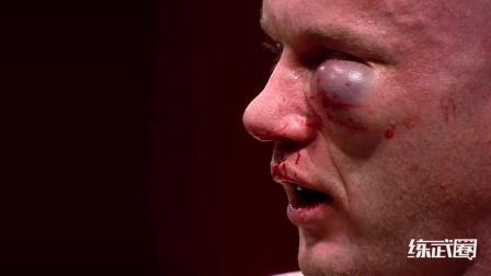 比赛打得太激烈, 拳手眼部肿起鸡蛋大的包, 裁判当场就结束了比赛!