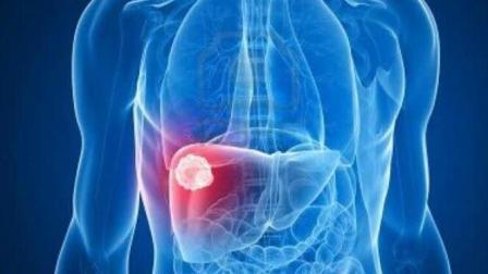 这个生活习惯不改, 肝炎都能拖成肝癌, 再喜欢也要改