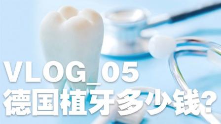 VLOG 05 德国的牙科