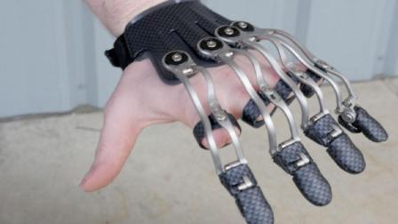 3D打印手掌, 让失去手指的人也能像普通人一样活动!