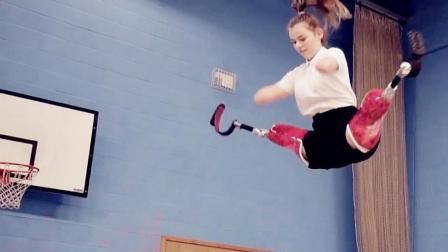 女孩患病四肢被截肢, 戴假肢练习走路, 还玩蹦床成冠军