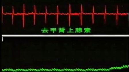 卫生部医学视听教材-生理学-SL015 心血管活动的神经体液调节