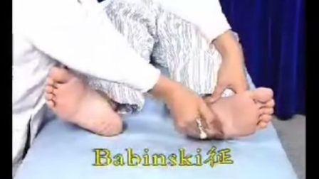 Babinski征