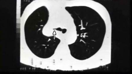 2012执业医师技能-原发性肺癌