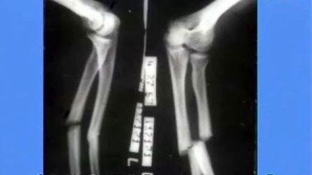 肢体骨折正侧位