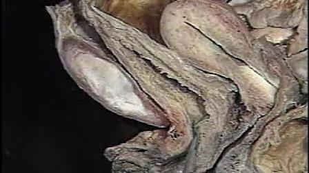 人体解剖方法   女性盆腔脏器解剖_标清