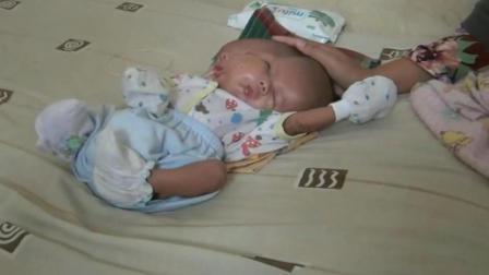 印尼惊现双头男婴 产检时医生只说头比较大