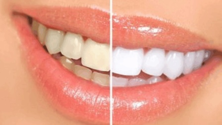 夏季上火, 口臭、口腔溃疡怎么办? 刷牙加点它, 牙齿白上一个度!