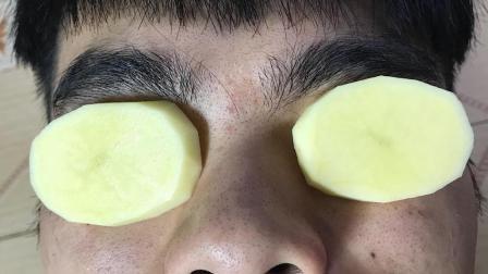 土豆切片贴在眼睛上太厉害了, 可惜知道的人并不多, 学会受用一生