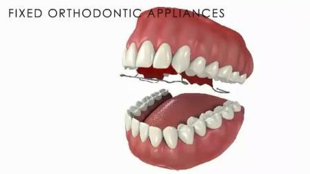 通过牙齿矫正调整不良咬合关系, 改变牙齿位置!