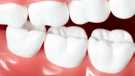 牙齿发黄不用急, 学会一招让牙齿变白, 你试过吗?